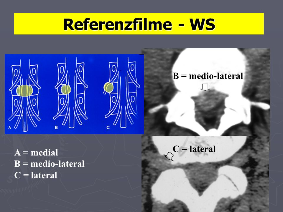 Referenzfilme - WS B = medio-lateral C = lateral A = medial