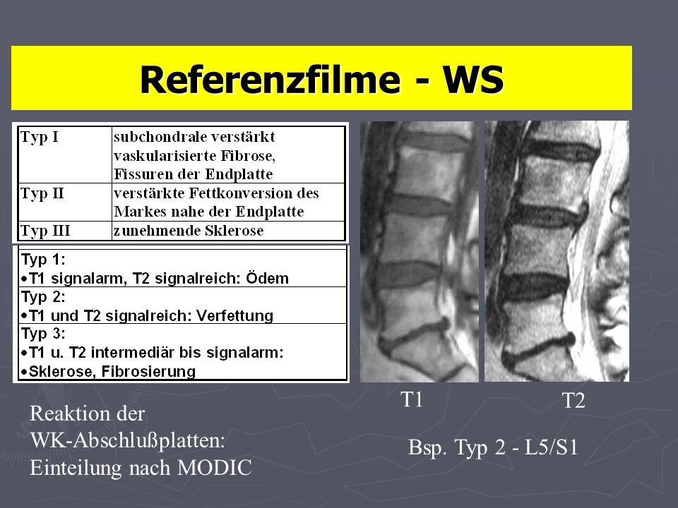Referenzfilme - WS T1 T2 Reaktion der WK-Abschlußplatten: