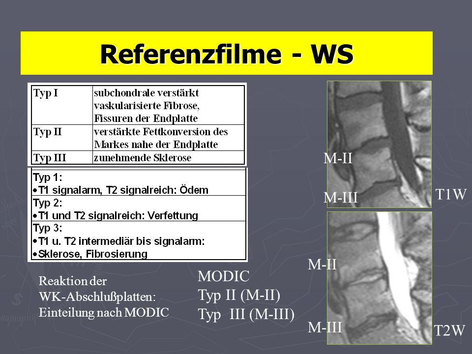 Referenzfilme - WS M-II T1W M-III M-II MODIC Typ II (M-II)