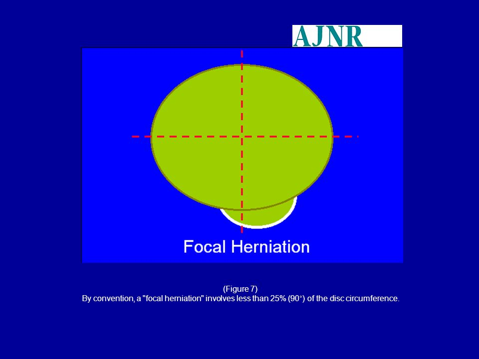 (Figure 7) By convention, a focal herniation involves less than 25% (90) of the disc circumference.