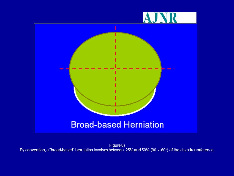 Figure 8) By convention, a broad-based herniation involves between 25% and 50% (90-180) of the disc circumference.