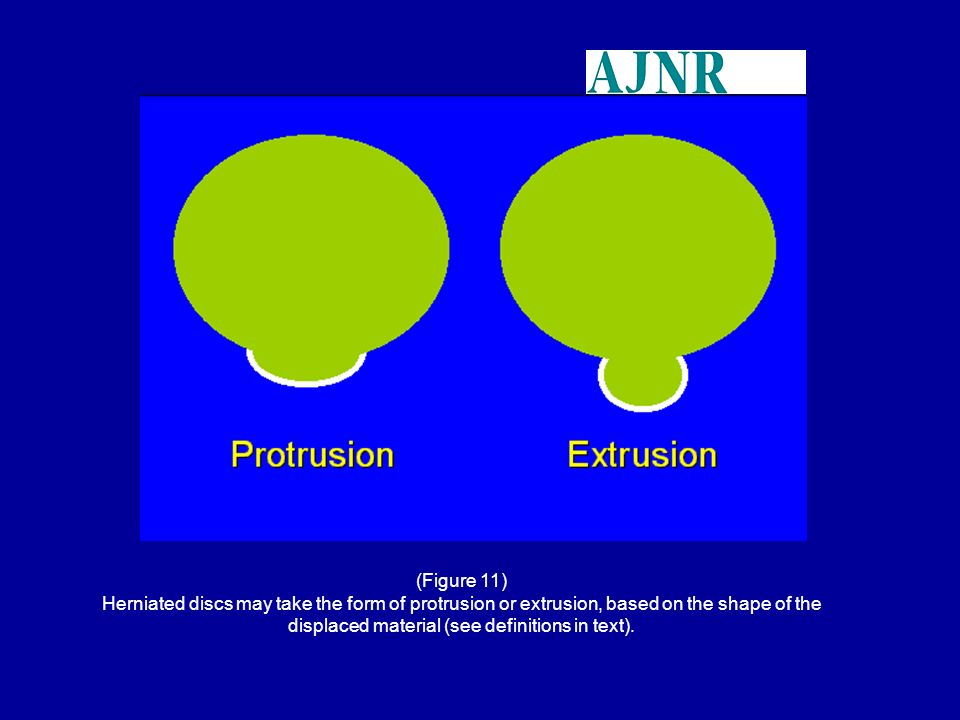 (Figure 11) Herniated discs may take the form of protrusion or extrusion, based on the shape of the displaced material (see definitions in text).