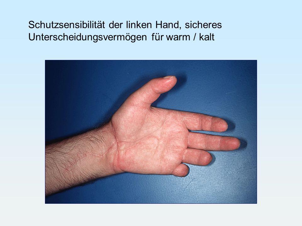 Schutzsensibilität der linken Hand, sicheres Unterscheidungsvermögen für warm / kalt