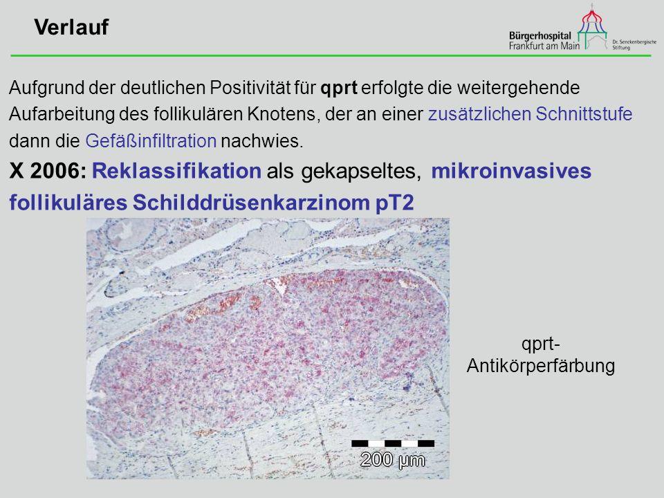X 2006: Reklassifikation als gekapseltes, mikroinvasives