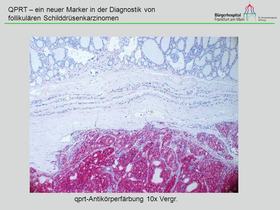 QPRT – ein neuer Marker in der Diagnostik von