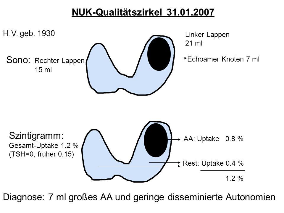 NUK-Qualitätszirkel 31.01.2007 Sono: Rechter Lappen Szintigramm: