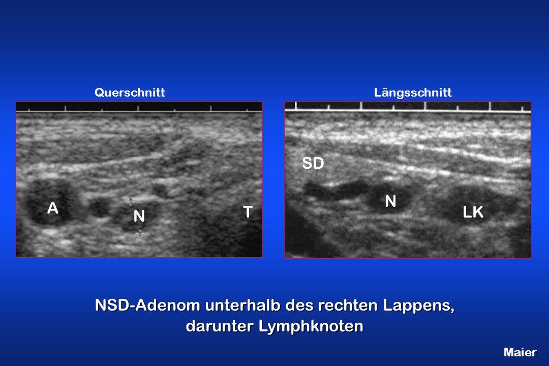 NSD-Adenom unterhalb des rechten Lappens, darunter Lymphknoten