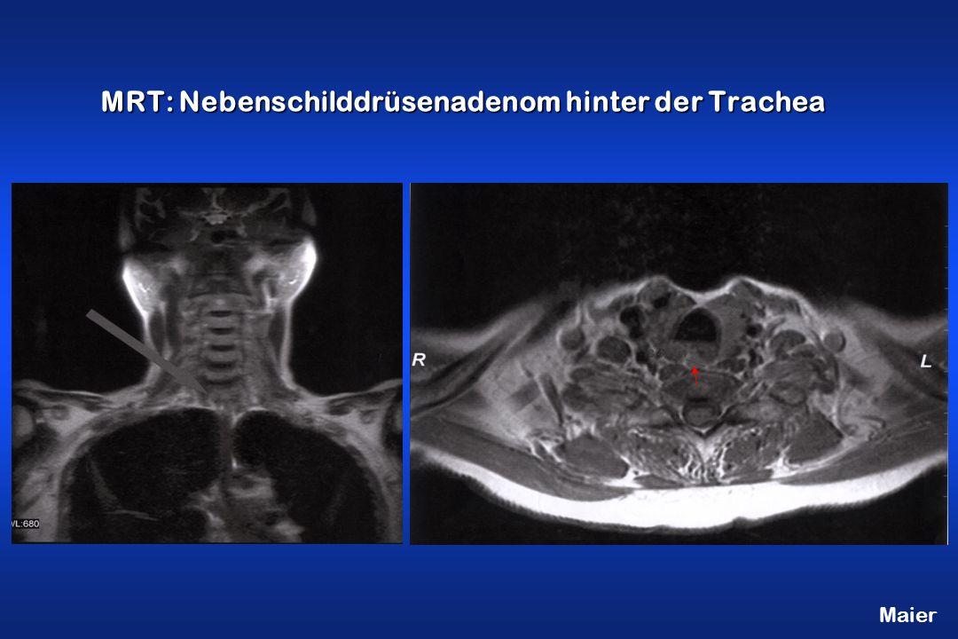 MRT: Nebenschilddrüsenadenom hinter der Trachea