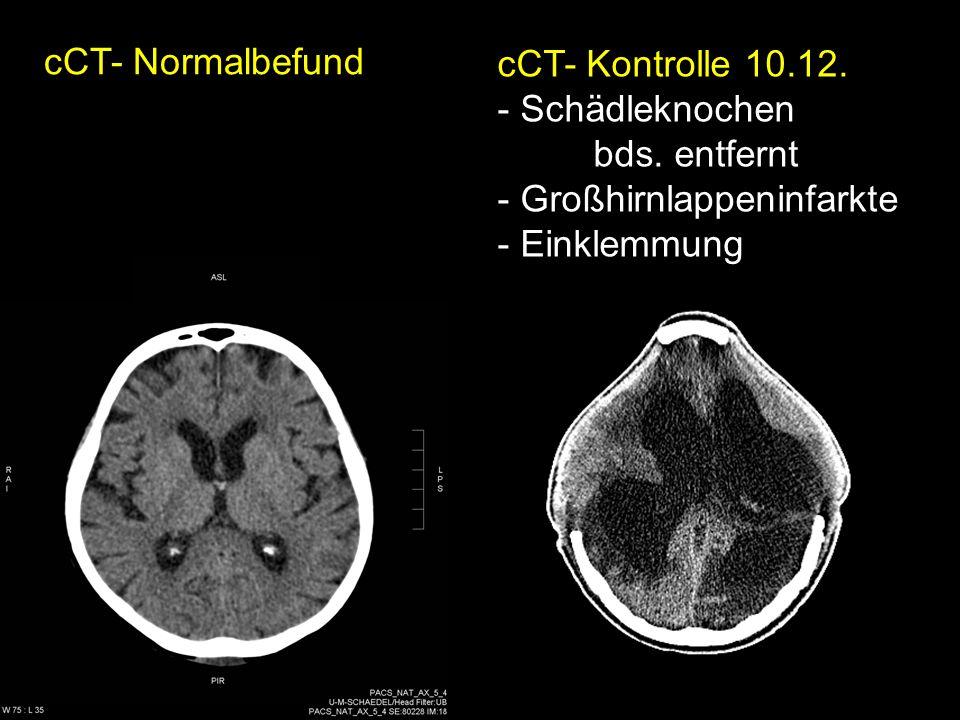 cCT- Normalbefund cCT- Kontrolle 10.12. Schädleknochen.