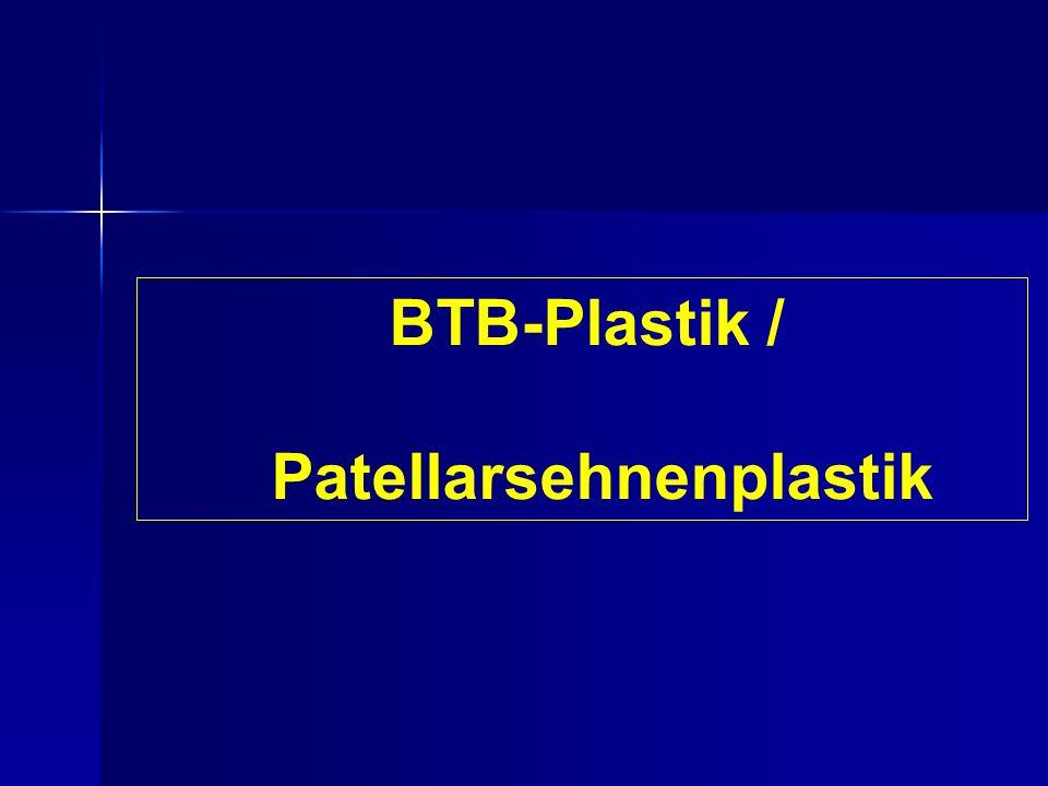 Patellarsehnenplastik