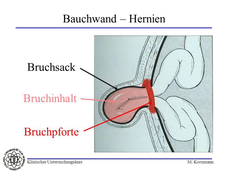 Bauchwand – Hernien Bruchsack Bruchinhalt Bruchpforte