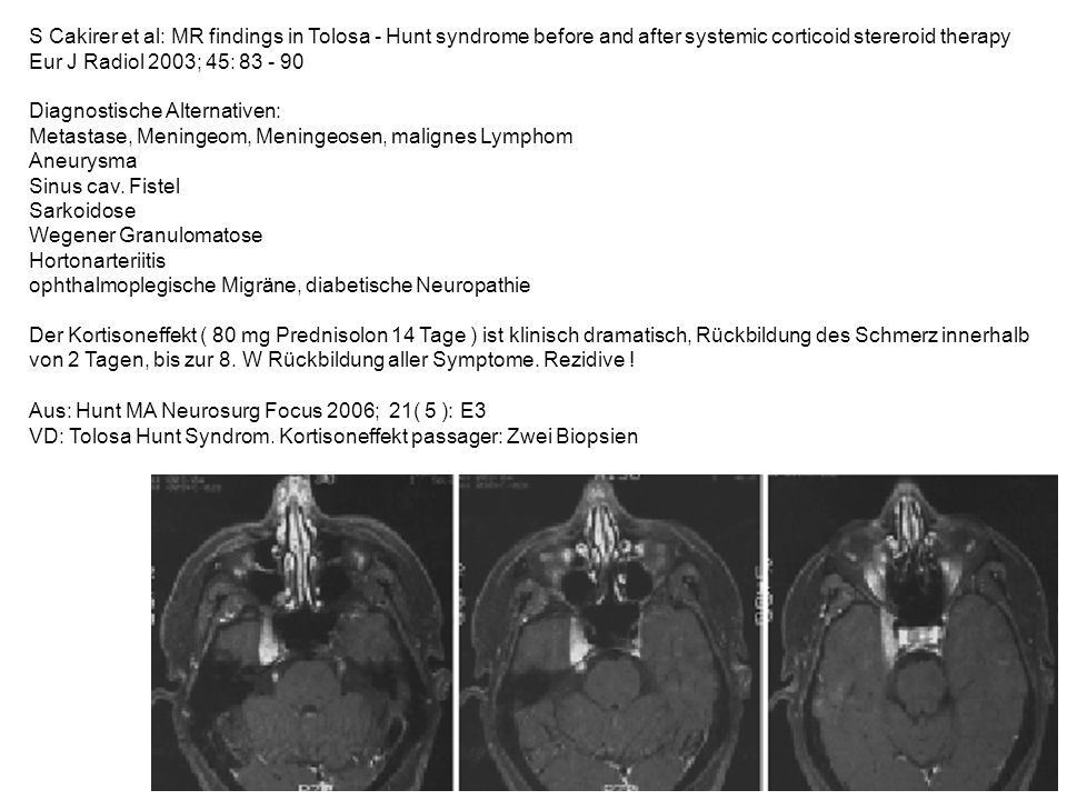 S Cakirer et al: MR findings in Tolosa - Hunt syndrome before and after systemic corticoid stereroid therapy