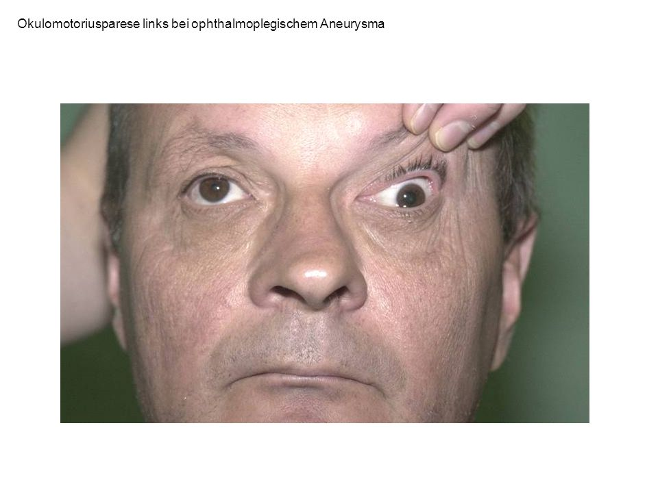 Okulomotoriusparese links bei ophthalmoplegischem Aneurysma