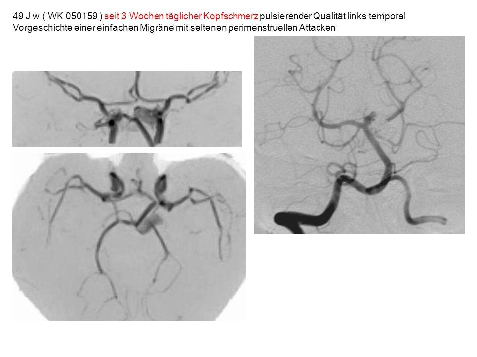 49 J w ( WK 050159 ) seit 3 Wochen täglicher Kopfschmerz pulsierender Qualität links temporal