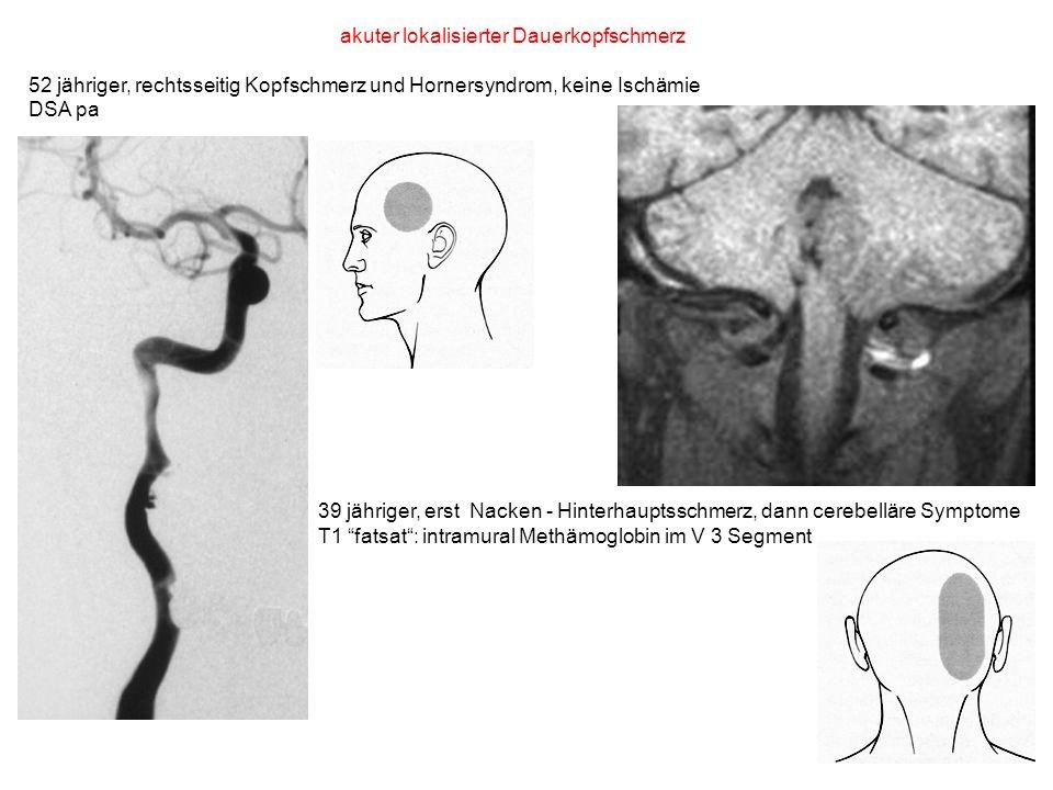 akuter lokalisierter Dauerkopfschmerz