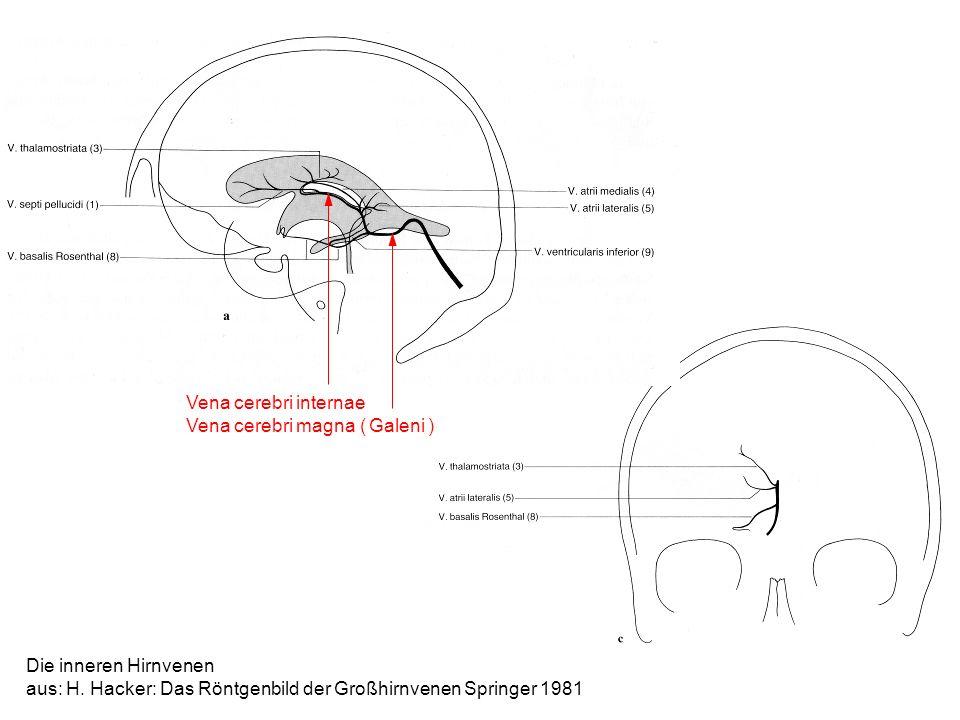 Vena cerebri internae Vena cerebri magna ( Galeni ) Die inneren Hirnvenen.