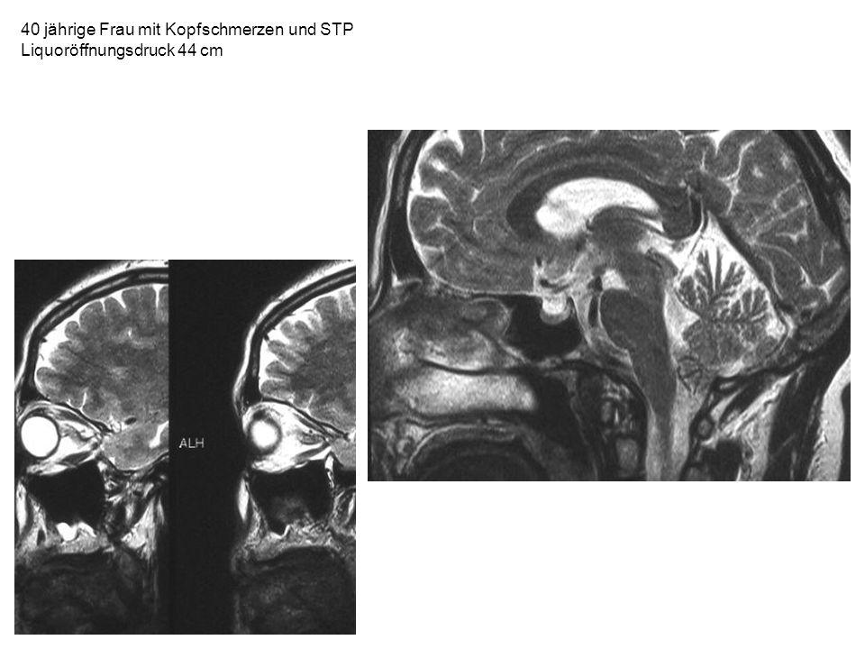 40 jährige Frau mit Kopfschmerzen und STP