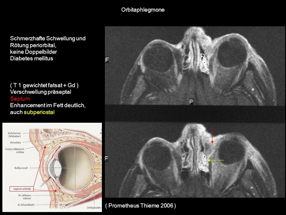 Orbitaphlegmone Schmerzhafte Schwellung und Rötung periorbital, keine Doppelbilder. Diabetes mellitus.
