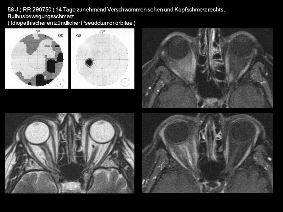 58 J ( RR 290750 ) 14 Tage zunehmend Verschwommen sehen und Kopfschmerz rechts, Bulbusbewegungsschmerz