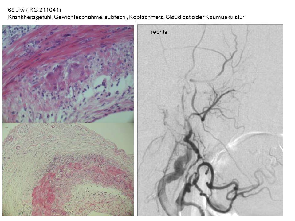 68 J w ( KG 211041) Krankheitsgefühl, Gewichtsabnahme, subfebril, Kopfschmerz, Claudicatio der Kaumuskulatur.