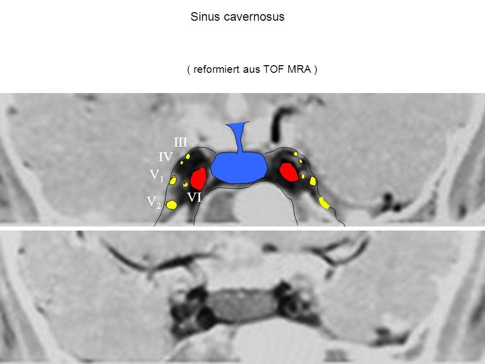 Sinus cavernosus ( reformiert aus TOF MRA ) III IV V1 VI V2