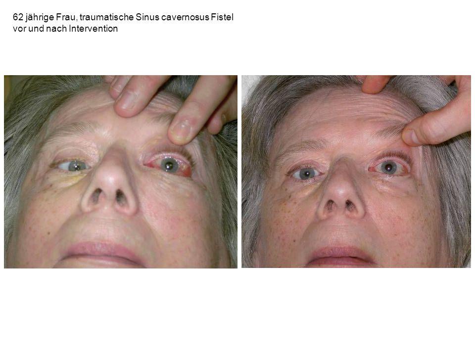 62 jährige Frau, traumatische Sinus cavernosus Fistel
