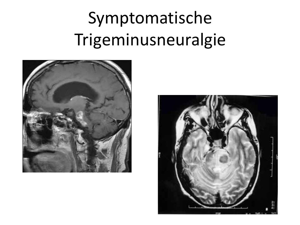 Symptomatische Trigeminusneuralgie