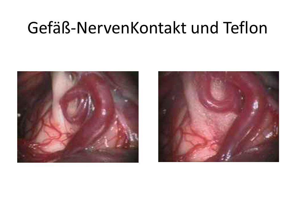 Gefäß-NervenKontakt und Teflon