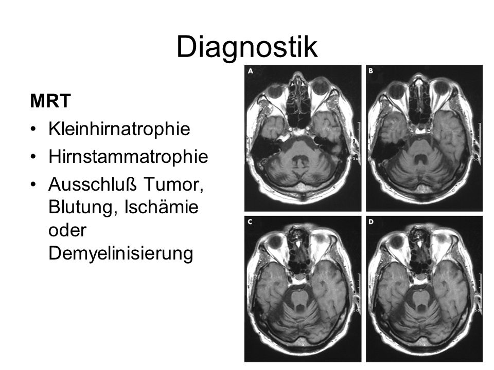 Diagnostik MRT Kleinhirnatrophie Hirnstammatrophie