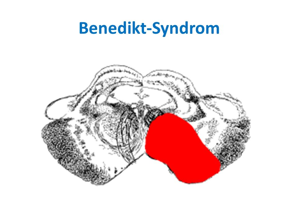 Benedikt-Syndrom