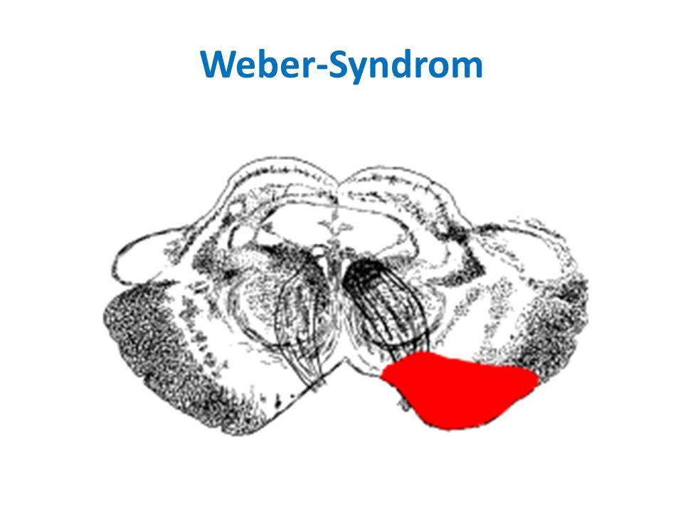Weber-Syndrom