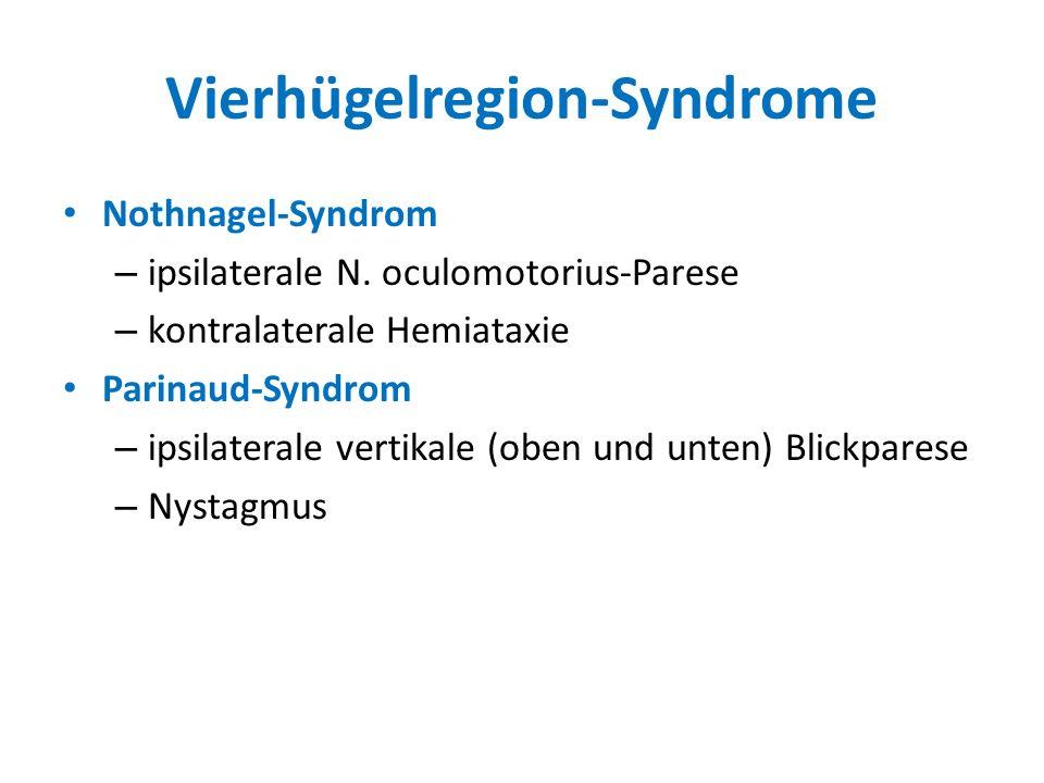 Vierhügelregion-Syndrome