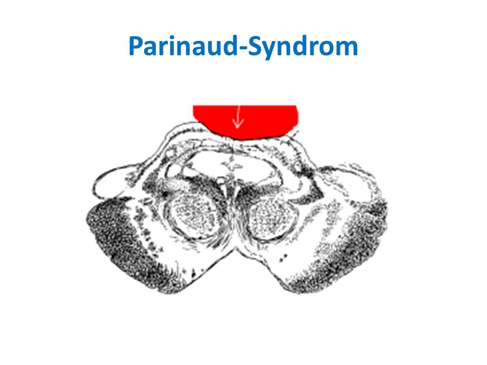 Parinaud-Syndrom