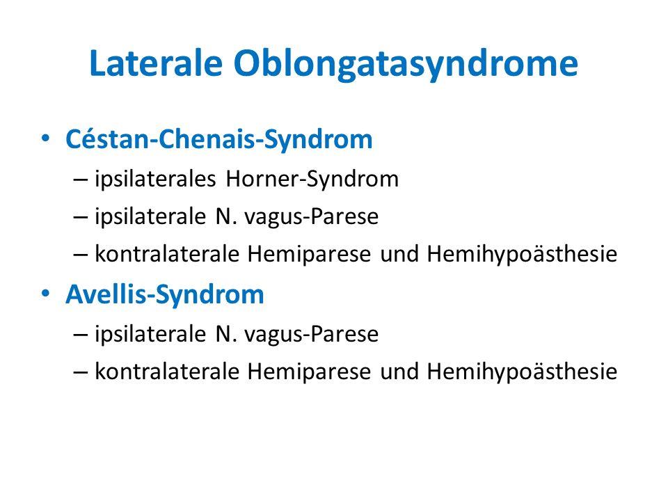 Laterale Oblongatasyndrome