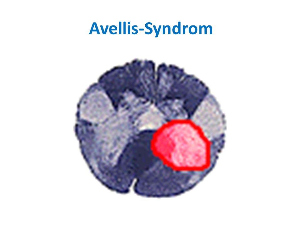 Avellis-Syndrom