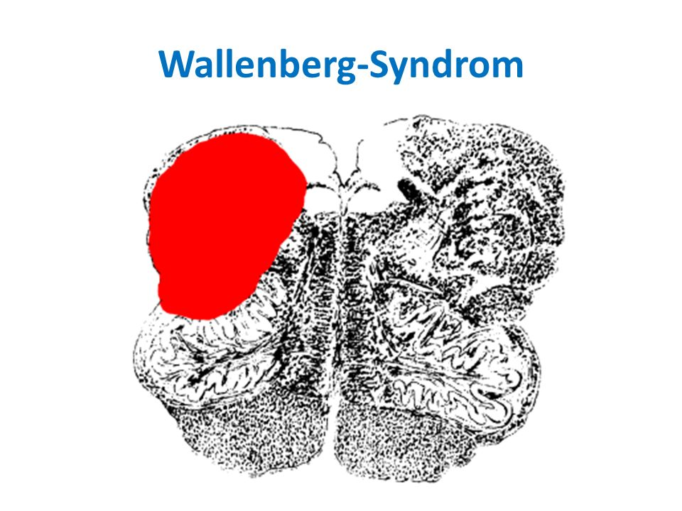 Wallenberg-Syndrom