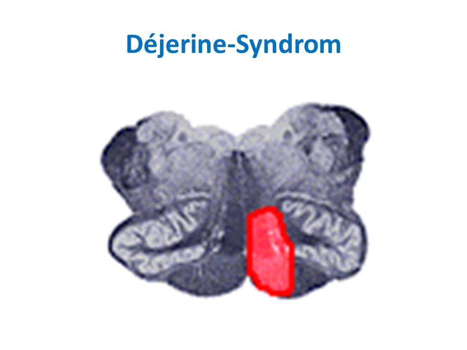Déjerine-Syndrom