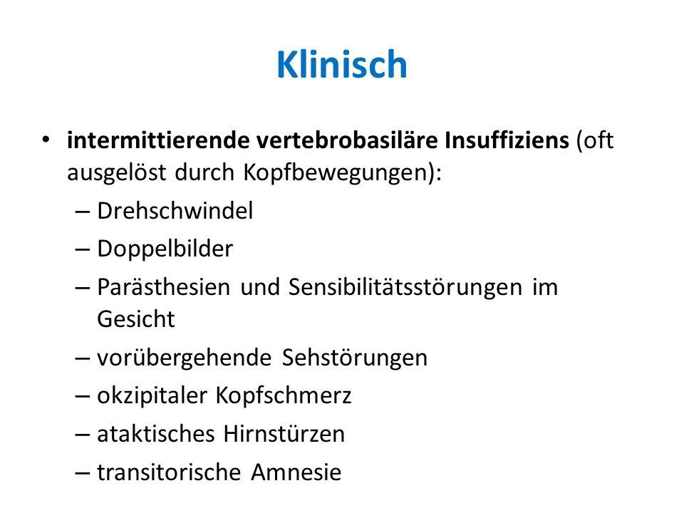 Klinisch intermittierende vertebrobasiläre Insuffiziens (oft ausgelöst durch Kopfbewegungen): Drehschwindel.