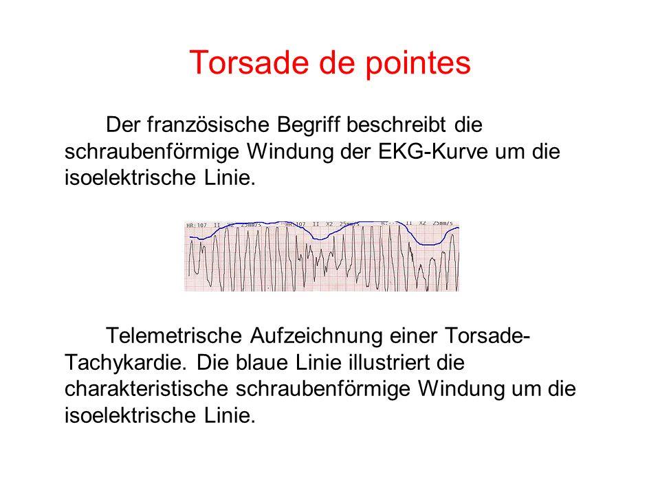 Torsade de pointes Der französische Begriff beschreibt die schraubenförmige Windung der EKG-Kurve um die isoelektrische Linie.