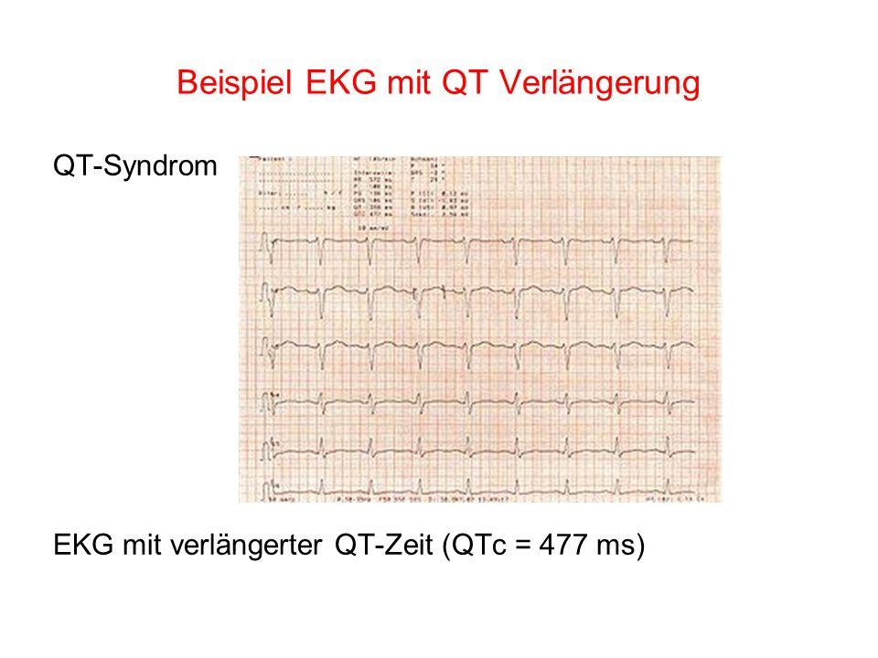 Beispiel EKG mit QT Verlängerung