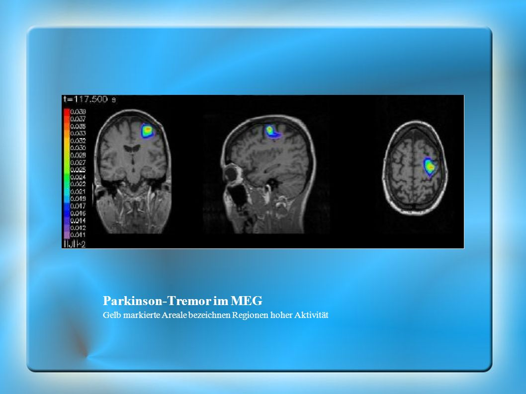 Parkinson-Tremor im MEG