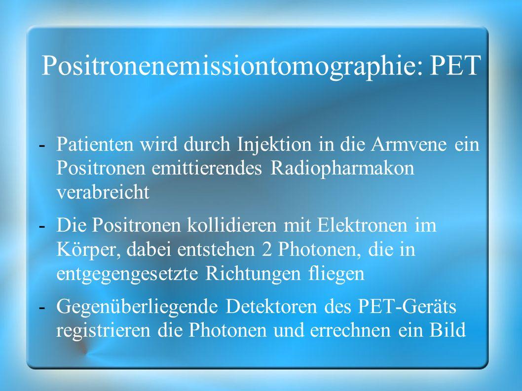 Positronenemissiontomographie: PET