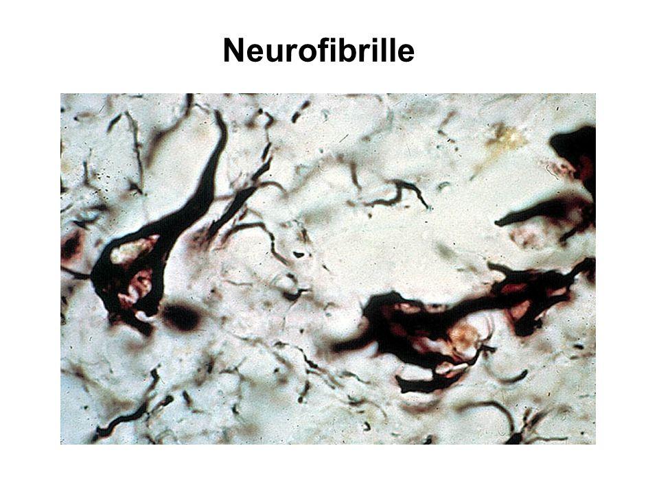 Neurofibrille