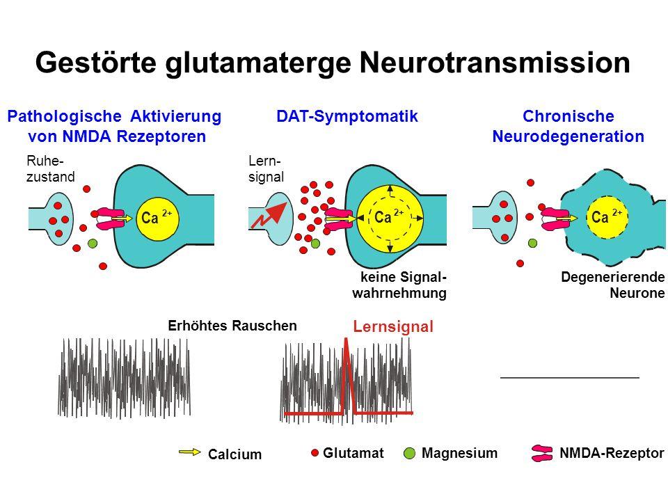 Gestörte glutamaterge Neurotransmission