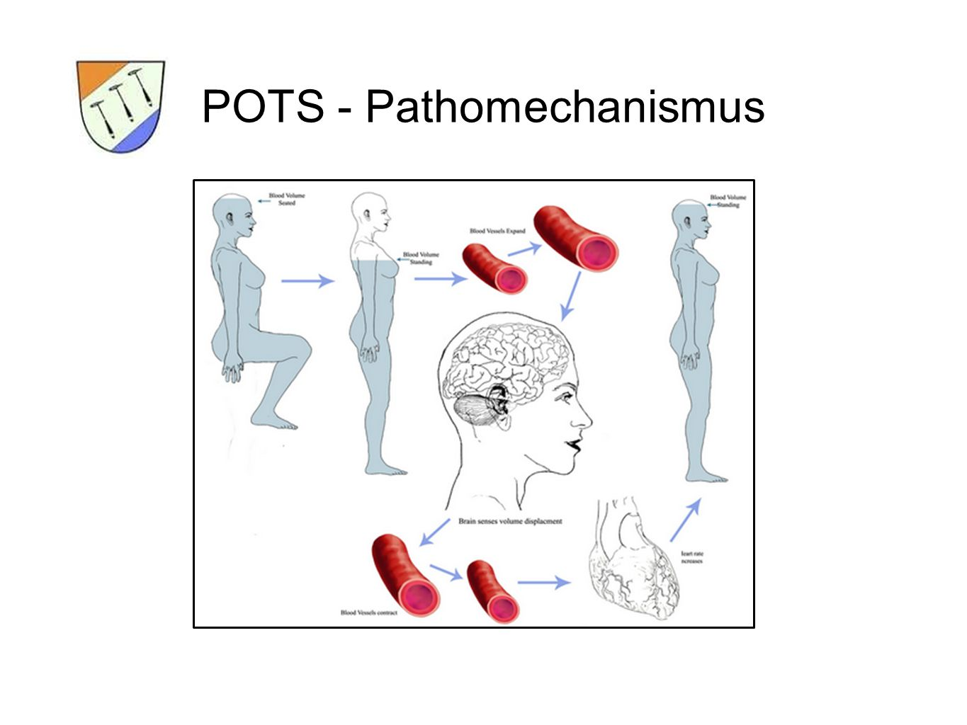 POTS - Pathomechanismus