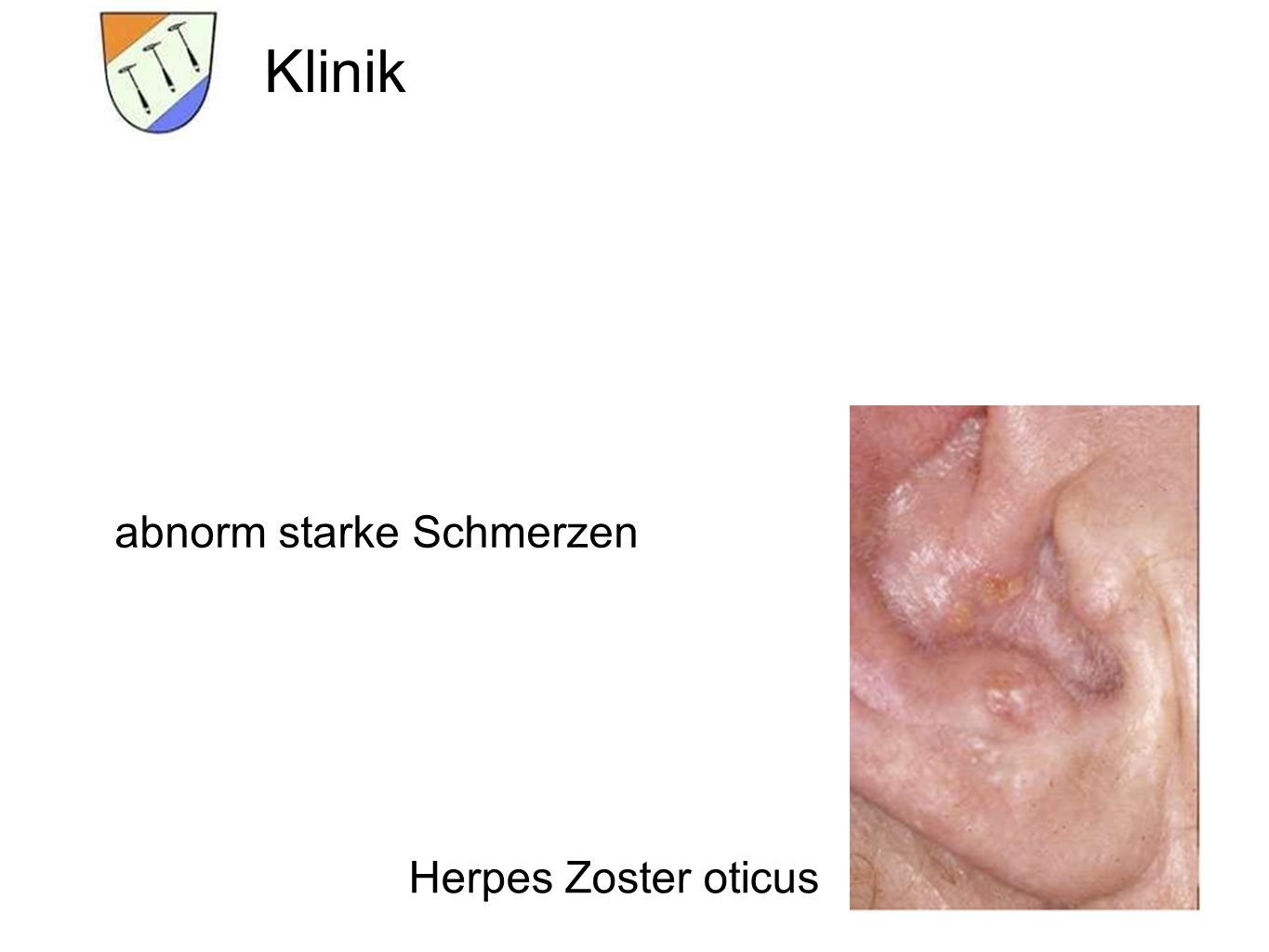 herpes zoster ncp 1 the varicella zoster virus can hide for years in the dorsal root _____ 2 a bundle of impulse-carrying fibers that connect the brain and spinal cord withother.