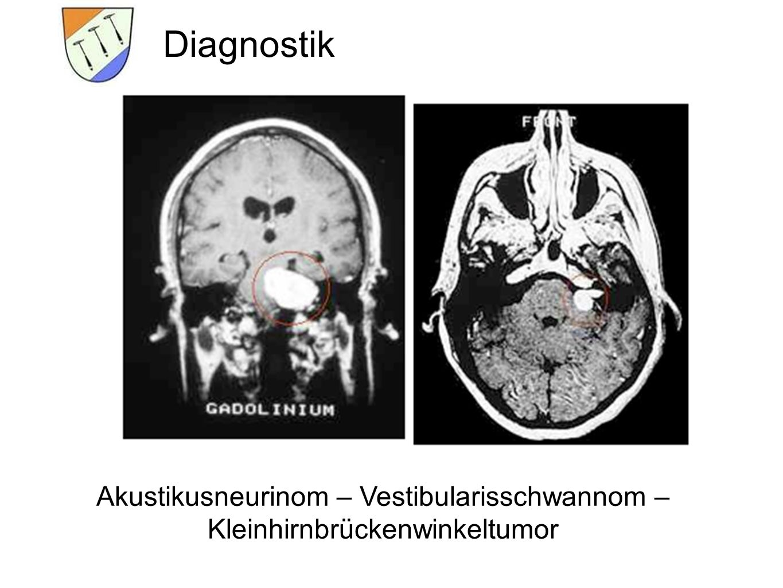 Diagnostik Akustikusneurinom – Vestibularisschwannom – Kleinhirnbrückenwinkeltumor