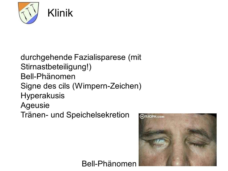 Klinik durchgehende Fazialisparese (mit Stirnastbeteiligung!)