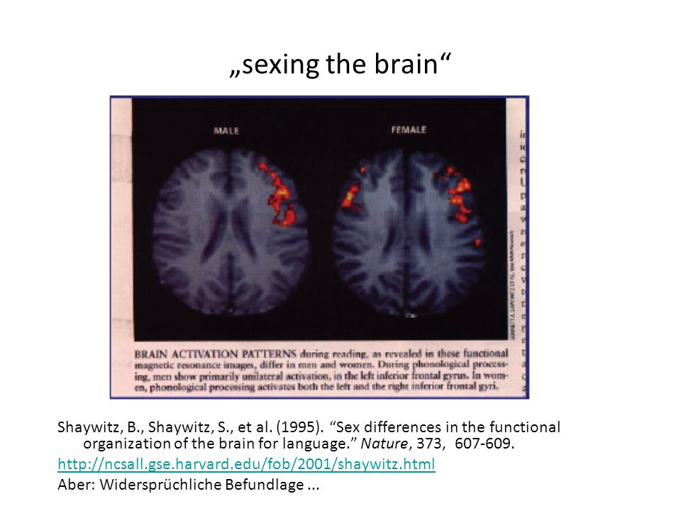 """sexing the brain"