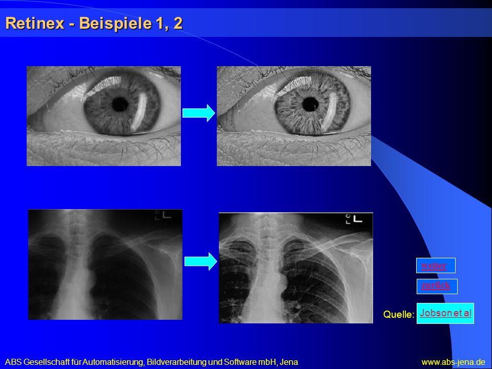 Retinex - Beispiele 1, 2 weiter zurück Quelle: Jobson et al